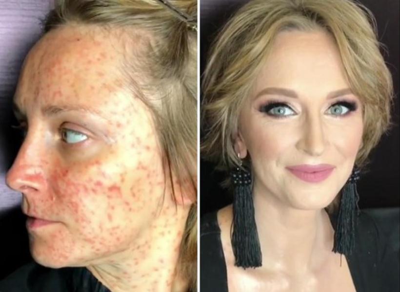 Berkat Makeup, Jerawatan Satu Wajah Seketika Jadi Mulus