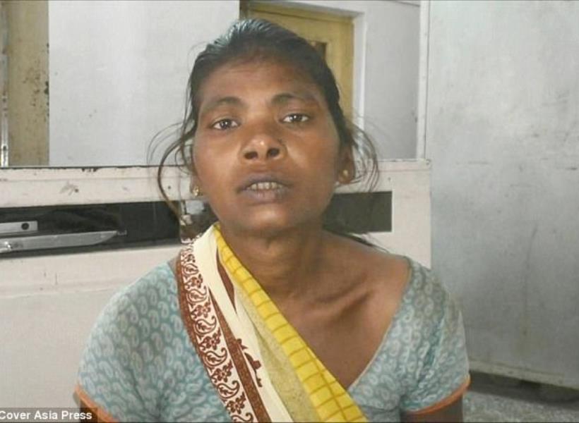 Aneh, Puluhan Jarum Muncul di Kaki Wanita India