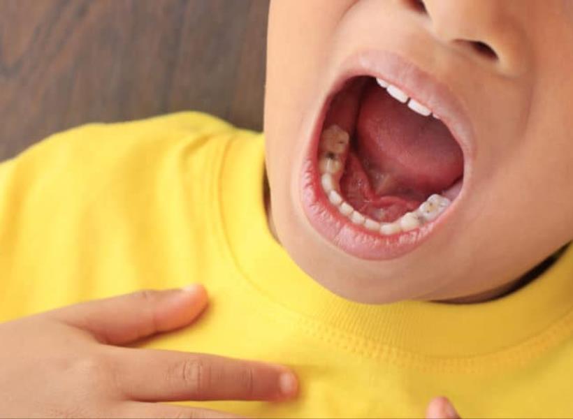 Heboh Kasus Difteri, Ini 5 Gejalanya