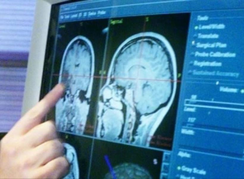 Mengaku Dengar 'Suara Tuhan', Ternyata Ada Tumor di Otaknya