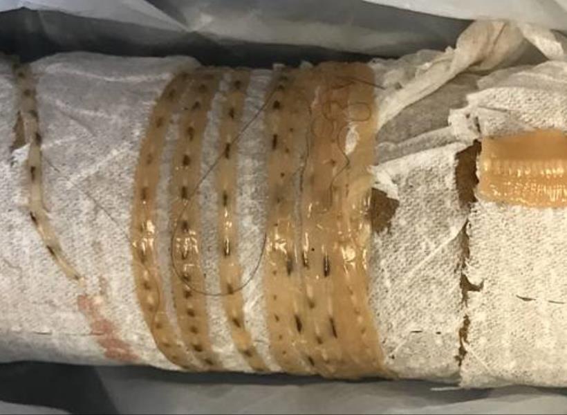 Keseringan Makan Sashimi, Cacing Sepanjang 1.6 Meter Bersarang di Perut