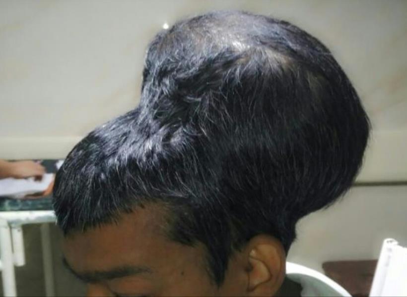Dokter India Klaim Sukses Angkat Tumor di Kepala