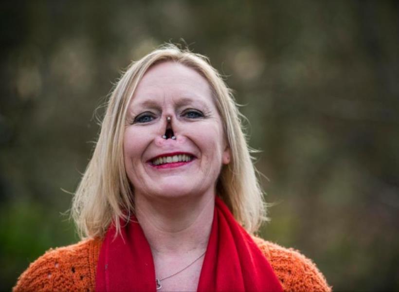 Kisah wanita yang Kehilangan Hidungnya