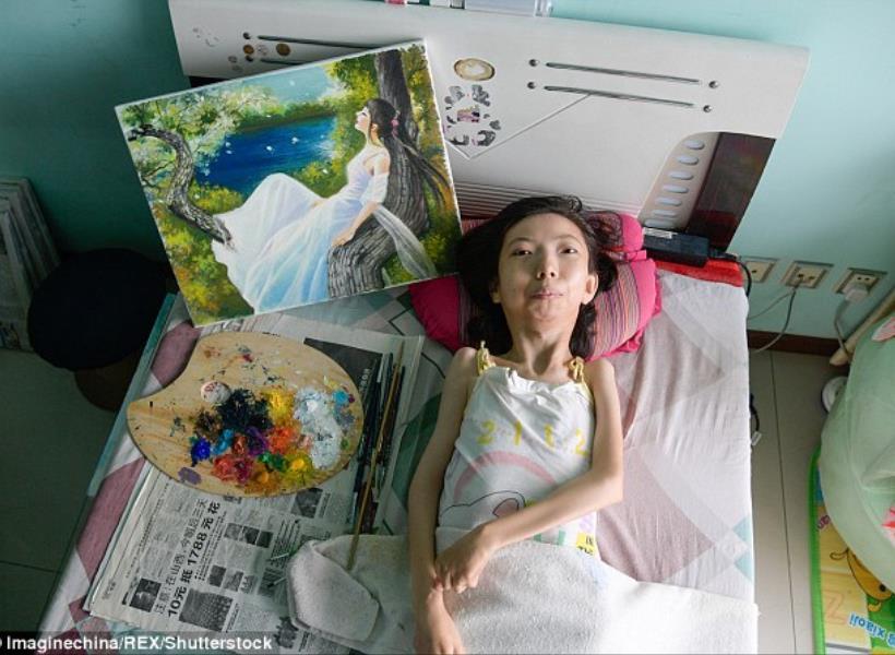 Terbaring 32 Tahun Karena Lumpuh, Pelukis Ini Akhirnya Terkenal