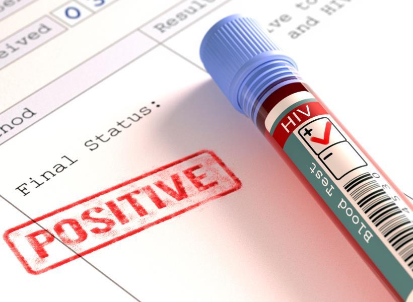 Situs Kencan Online Untuk Orang Pengidap HIV AIDS